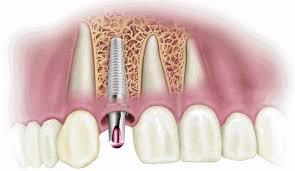 làm răng sứ implant giá bao nhiêu