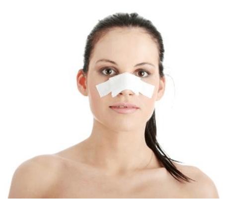 Chuẩn bị sức khỏe, tinh thần và tài chình đầy đủ trước khi nâng mũi